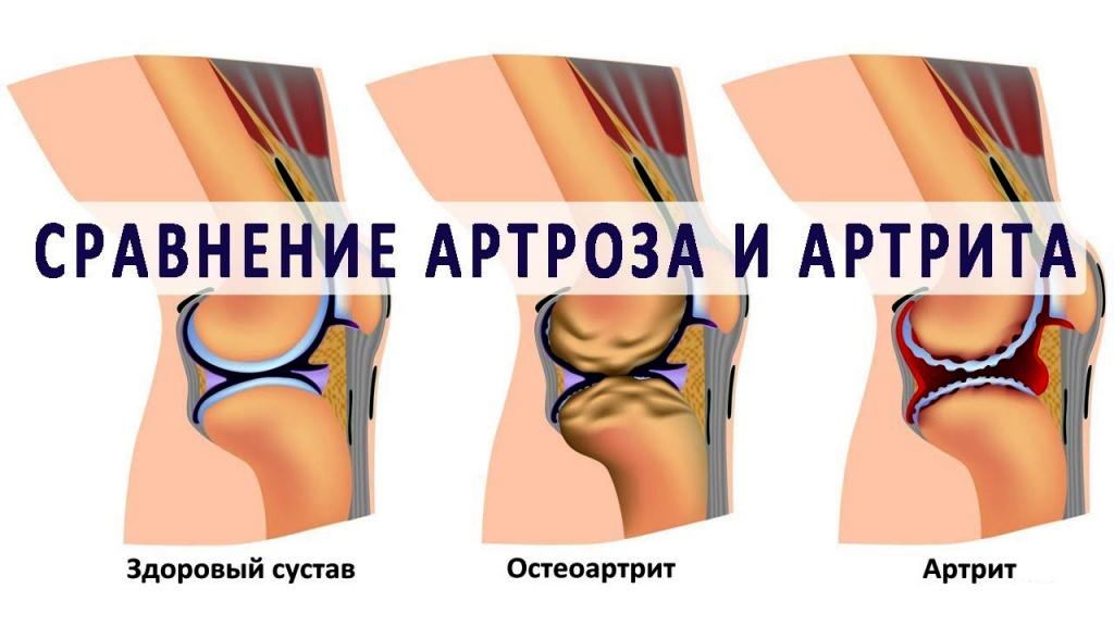 артирит или артроз