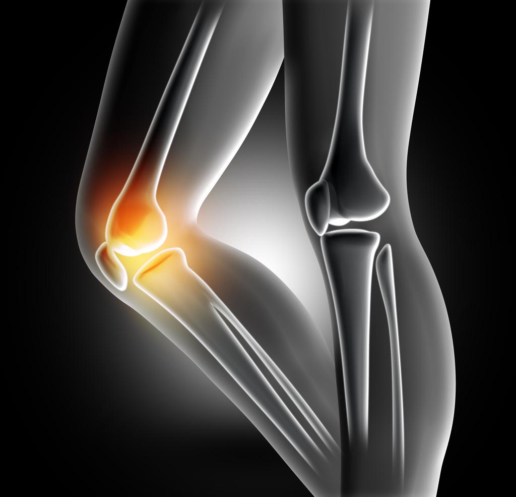 Лечение остеоартроза коленного сустава